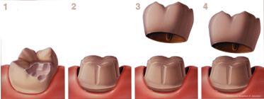 dental crown procedure Manchester