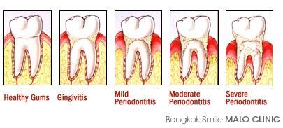 Gum Treatment Bangkok, Dental Clinic by Bangkok Smile Dental in Thailand