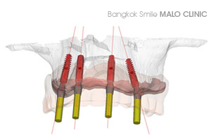 Dental Implants Bangkok Dental Clinic By Bangkok Smile