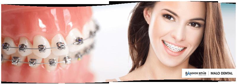 orthodontic treatment dental clinic by bangkok smile dental