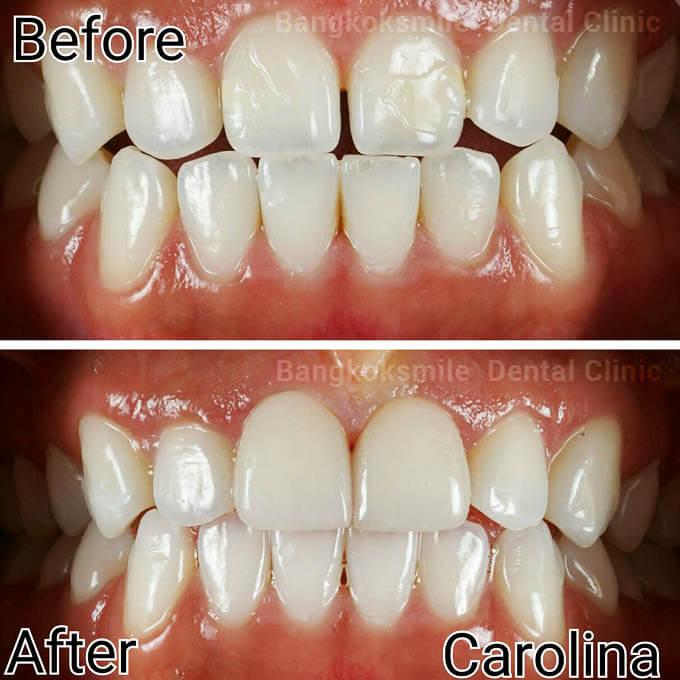 Dental Veneers by Bangkok Smile Dental Clinic in Thailand