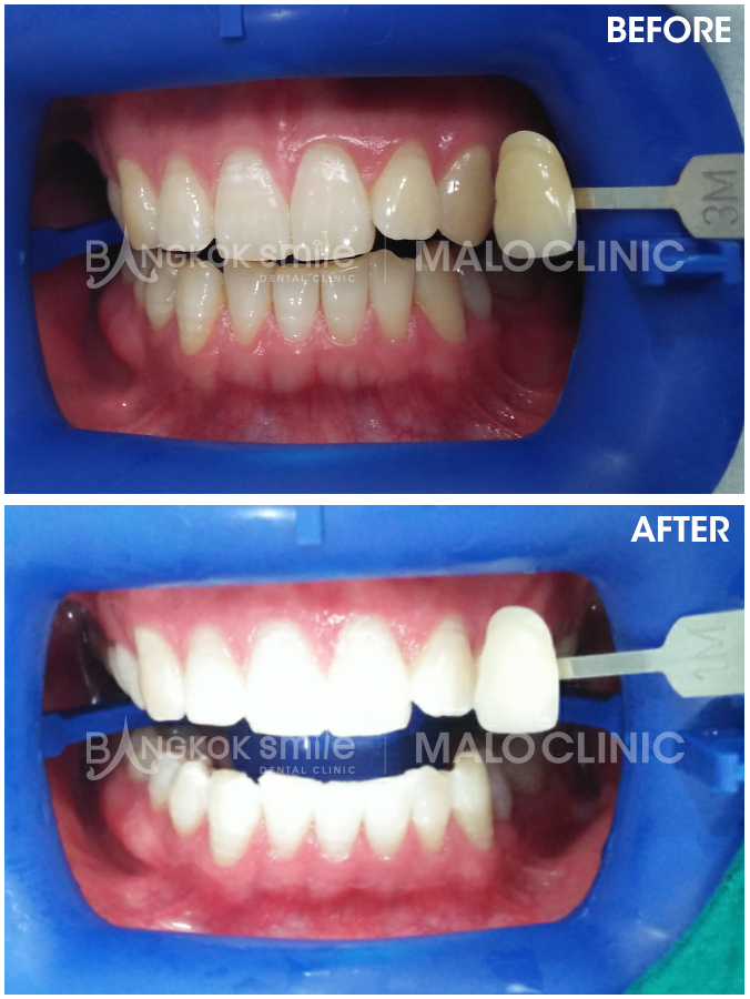 Zoom Whitening Bangkok Dental Dentist Clinic By Bangkok Smile