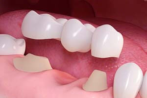 Dental Crowns/Bridges